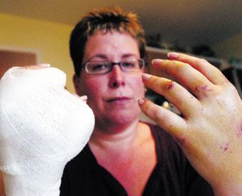 Sheryle Elsasser dog attack